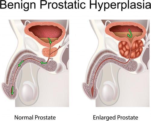 small resolution of prostate orgasms may help treat symptoms of benign prostatic hyperplasia