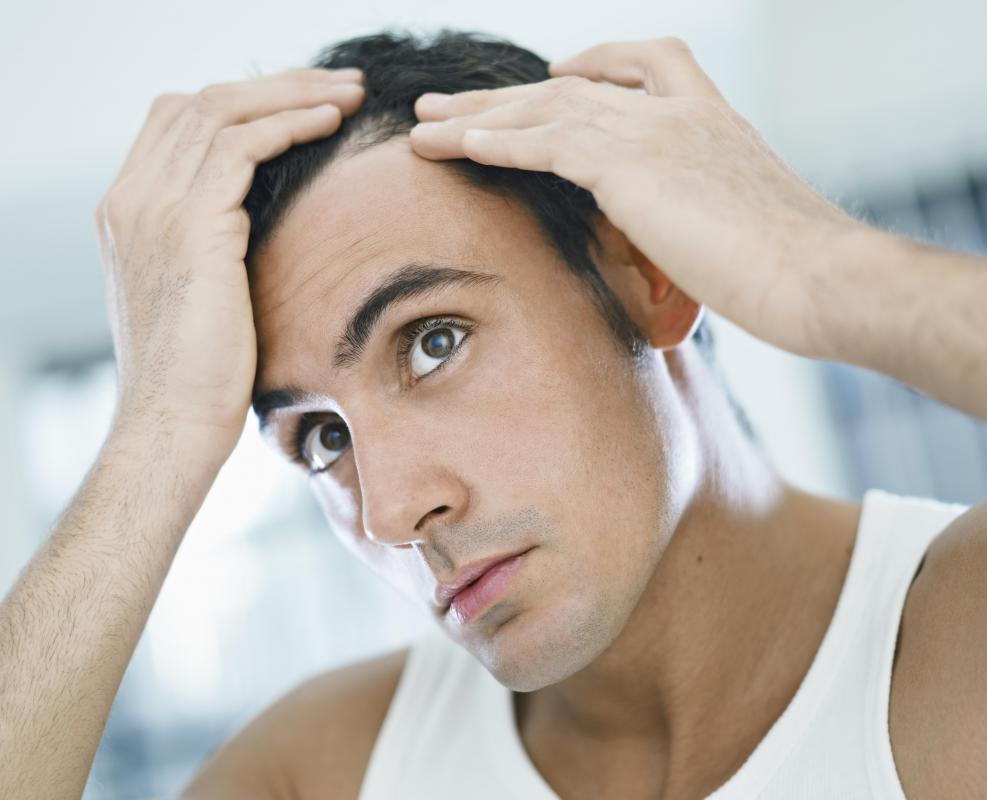 Is There A Connection Between Sertraline And Hair Loss