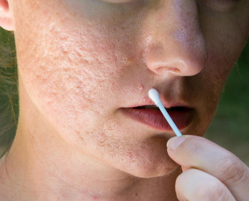 Image result for diy acne scar