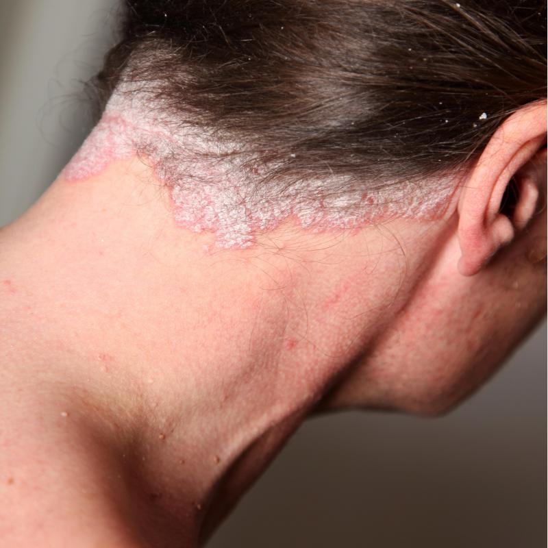 What Is Psoriasis With Pictures