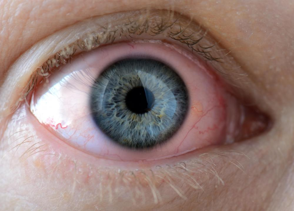Image result for ocular pressure behind the eyes