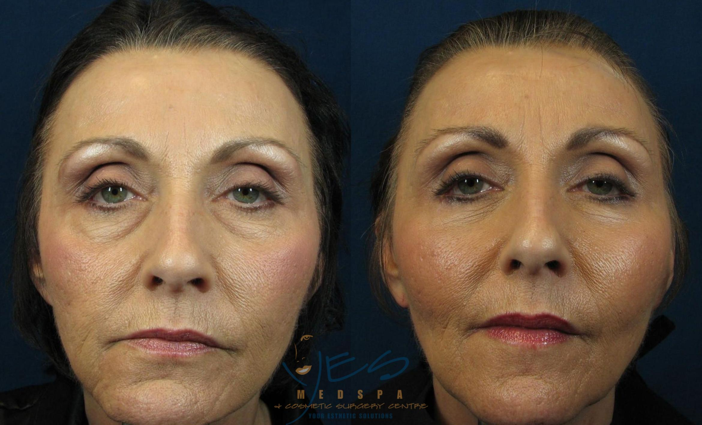 Lower Eyelid Blepharoplasty Before & After Photos Patient ...