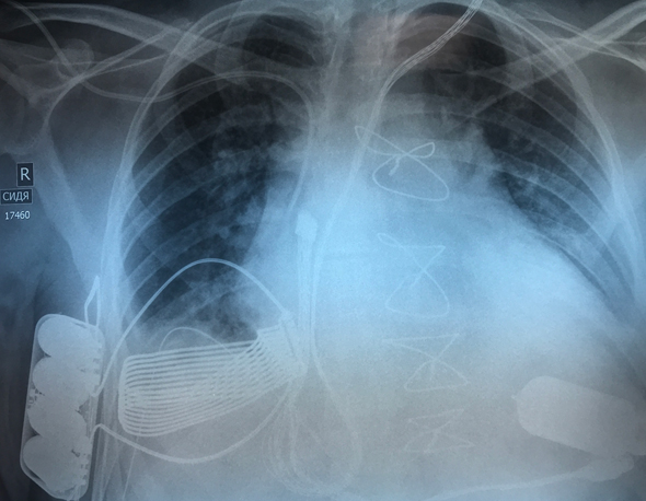 Ismail Tursunov, post surgery. Photo: Leviticus Cardio NRCSC