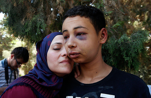 Tariq Abu Khdeir after being released from Israeli detention (Photo: Reuters)