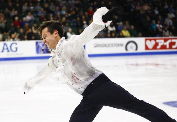 """Быченко в """"окровавленной рубашке"""". Фото: AFP"""