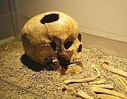 Il teschio del «bambino di Fidene» esposto a Roma