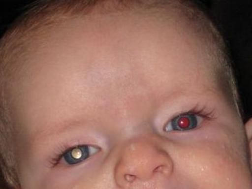 Se gli occhi dei bambini svelano la presenza di un tumore  Corriereit