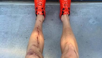 Guardate Phinney e la gamba ferita  La Gazzetta dello Sport