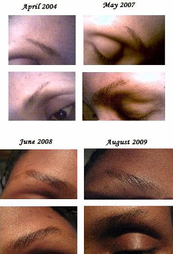 Rogaine For Eyebrows Before And After : rogaine, eyebrows, before, after, Products, Thinning, Eyebrows