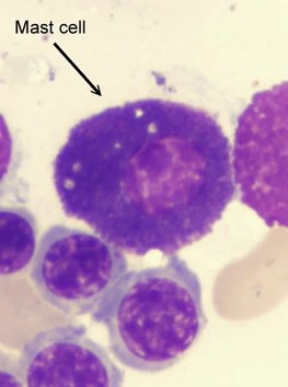 Pathology Outlines  Mast cells