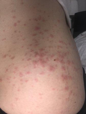 Puppp rash - BabyCenter
