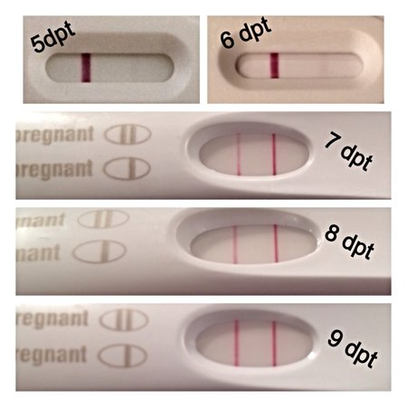 Beta test results - 10 days after FET (Frozen Embryo ...