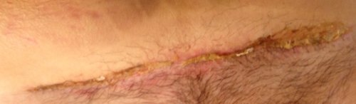 C-section incision infected (with gross pic)? - BabyCenter