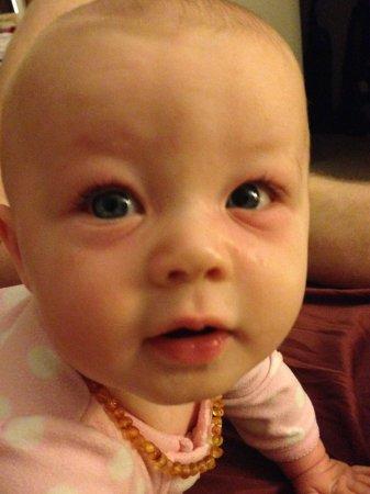 My poor baby has pink eye :-( - BabyCenter