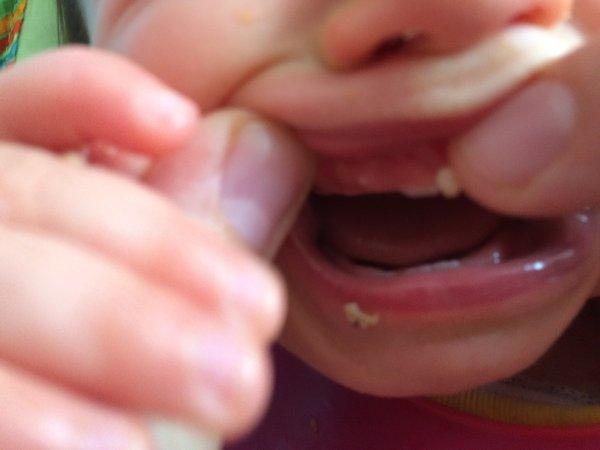 White bump on gums - BabyCenter