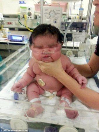 8 Pound Newborn Baby : pound, newborn, Mother, Expecting, Pound, Baby...., BabyCenter