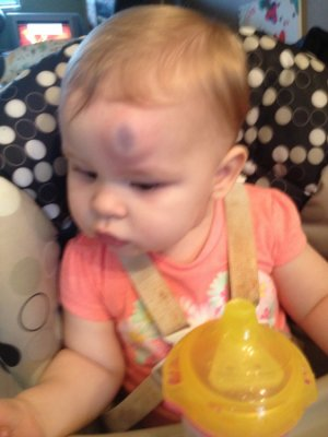 Huge Bump Bruise After Hitting Head Help November 2013