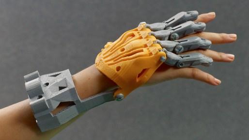 3d hand prosthetics