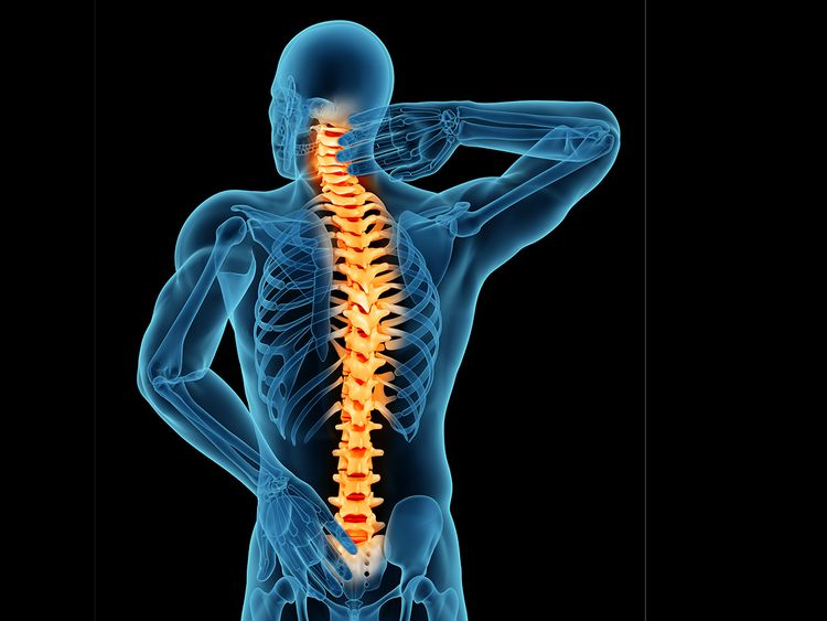Banish the pain of spinal stenosis | Health – Gulf News