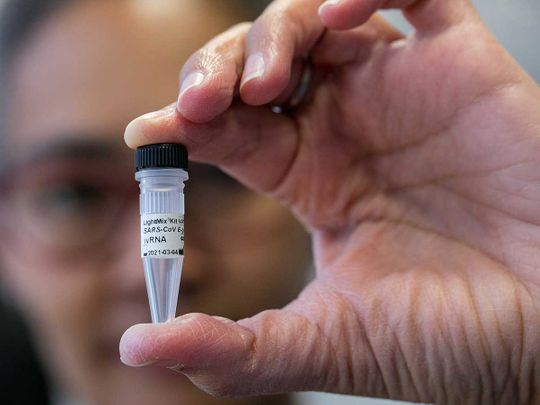 Is there a cure for coronavirus? | World – Gulf News