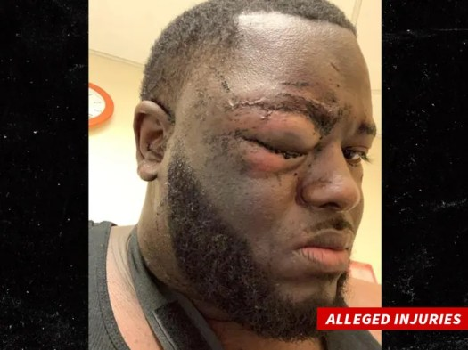 Aaron Donald Surveillance Video Shows NFL Star Was Attacked with Bottle, Lawyer Claims 2