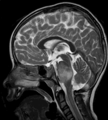 Pediatric Brain Tumor Mutations are Detectable in Cerebrospinal Fluid