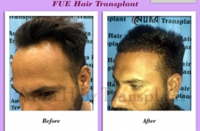 Best Hair Transplant Ludhiana