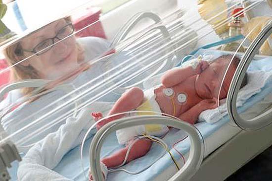 Copil prematur - Nou nascut June