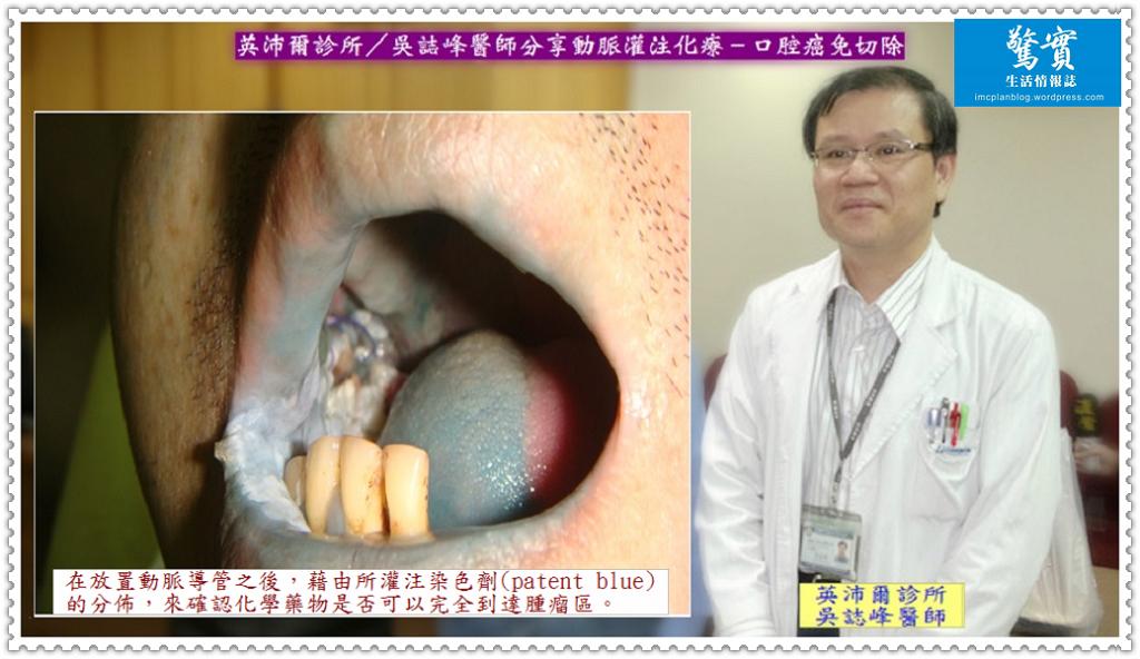 20180126a(驚實)-英沛爾診所/吳誌峰醫師分享動脈灌注化療-口腔癌免切除01