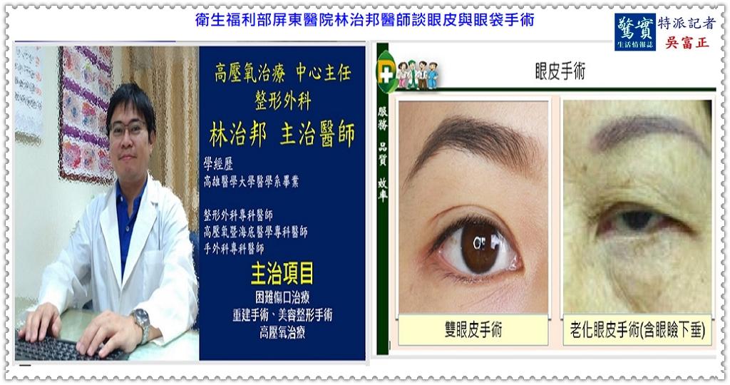20190619a(驚實報)-衛福部屏東醫院林治邦醫師談眼皮與眼袋手術01