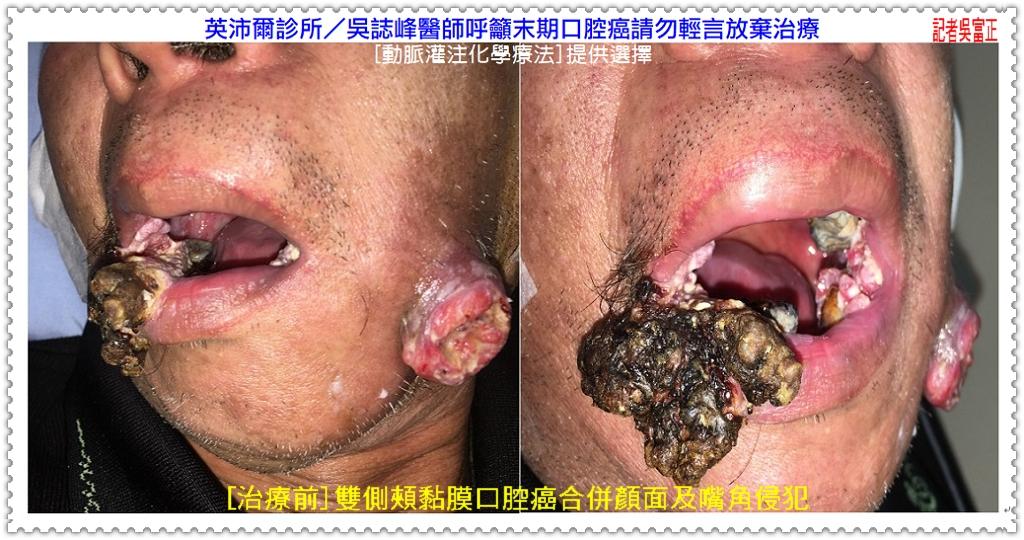20200601c-英沛爾診所/吳誌峰醫師呼籲末期口腔癌請勿輕言放棄治療01