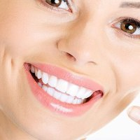 Blanchiment professionnel des dents