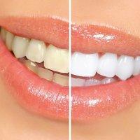 Tanden bleken gratis