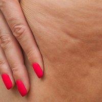 Apă celulită sau celulita grasa