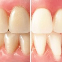 Bases du blanchiment des dents