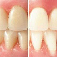 Basics of teeth whitening