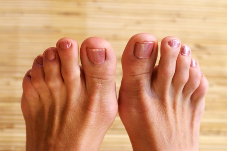 How to Remove a Hangnail on a Toe   LEAFtv
