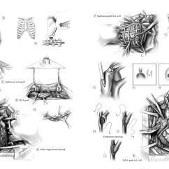 Diagram Of A Heart Bypass Graft Trailer Plug Wiring Diagrams Bioart Media Amanda S Almon