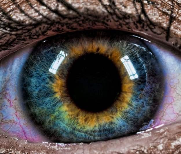 Beautiful Mutations 15 Staggering Photos of Heterochromia5