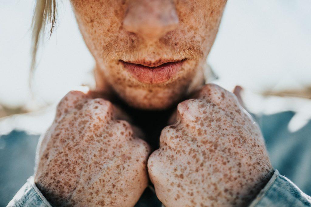 3. Las pecas nunca causan cáncer |  8 cosas que nunca sabías sobre las pecas |  Cerezas Bayas
