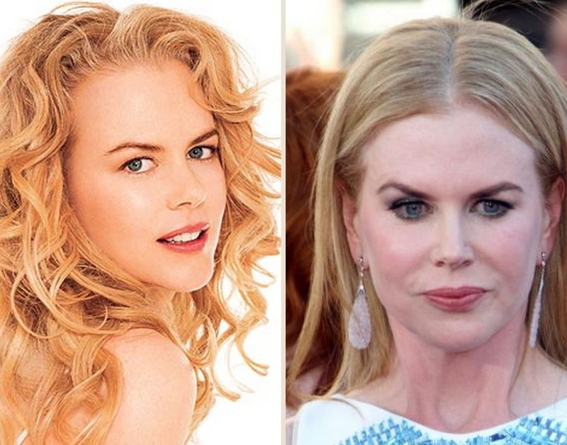 celebs_who_should_probably_stop_denying_plastic_surgery_rumors_01