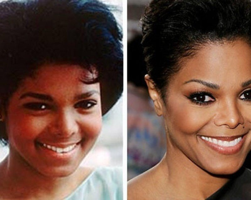 celebs_who_should_probably_stop_denying_plastic_surgery_rumors_06