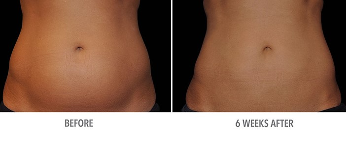 Results are not immediate | Coolsculpting Dos And Don'ts  | Her Beauty