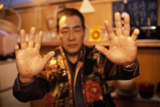 Протезирование отрезанных пальцев для японской Якудзы