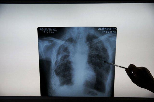 Печальные фото китайской больницы для неизлечимо больных шахтеров