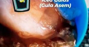 Es Gulas Gula Asem