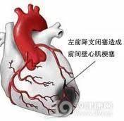 急性心肌梗死_急性心肌梗死的癥狀。治療。好評專家_疾病查詢_39疾病百科