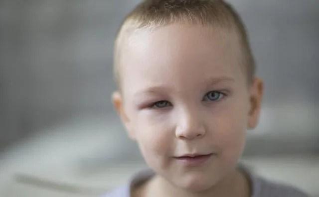 اسباب انتفاخ العين عند الاطفال 3a2ilati