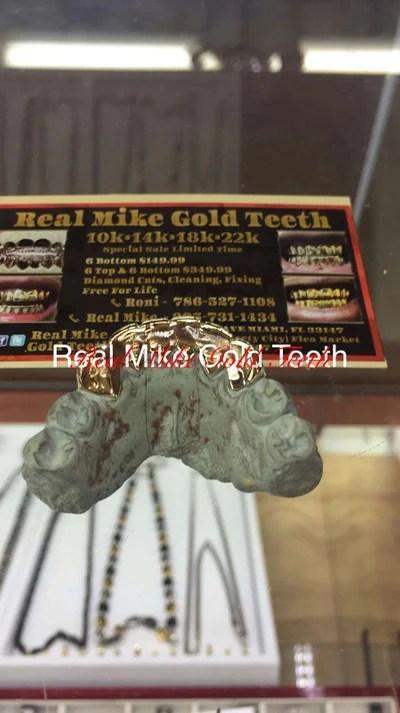 Real Mike Gold Teeth : teeth, Bottom, Grillz, Hialeah,, 5miles: