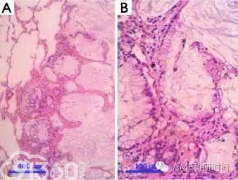 肺腺癌新分類:外科醫生需考慮的問題 - 91360智慧病理網